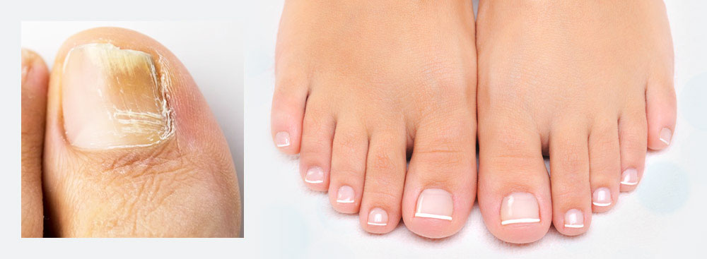 Fungal Nail treatment for an infection of the toe