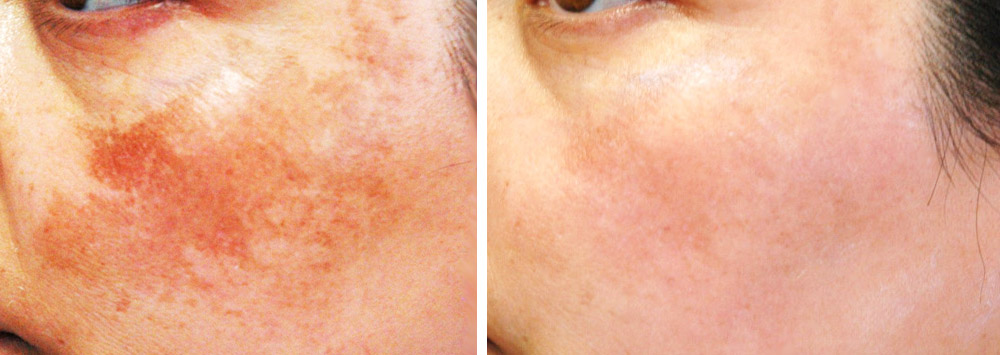 Sun spots, age spots, freckles Removed