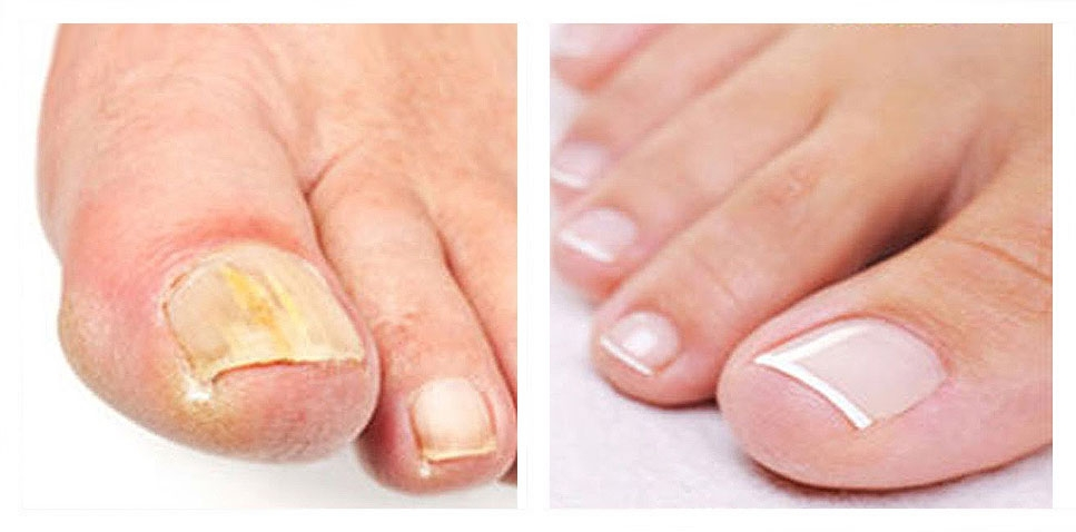 Fungal Nail Infection Treatment using Laser Technology - Services ...